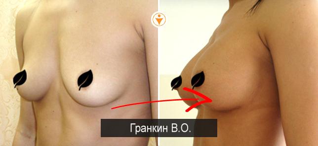 Пластика груди и интимная пластика
