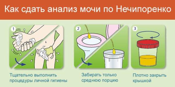 Какие болезни инфекции можно определить по анализу мочи Справка КЭК Новоясеневская