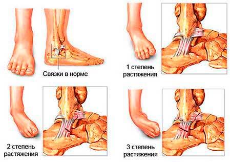 Опухоль на ноге в области пятки и голени виды и лечение