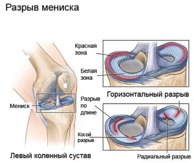 Повреждение менисков коленного сустава бинт для кистевого сустава
