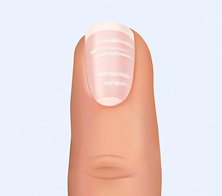 О чём говорят ногти на руках