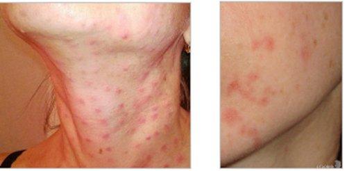 аквашайн аллергия отзывы