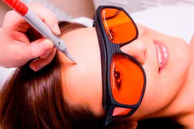 Темные круги под глазами как убрать с помощью косметолога