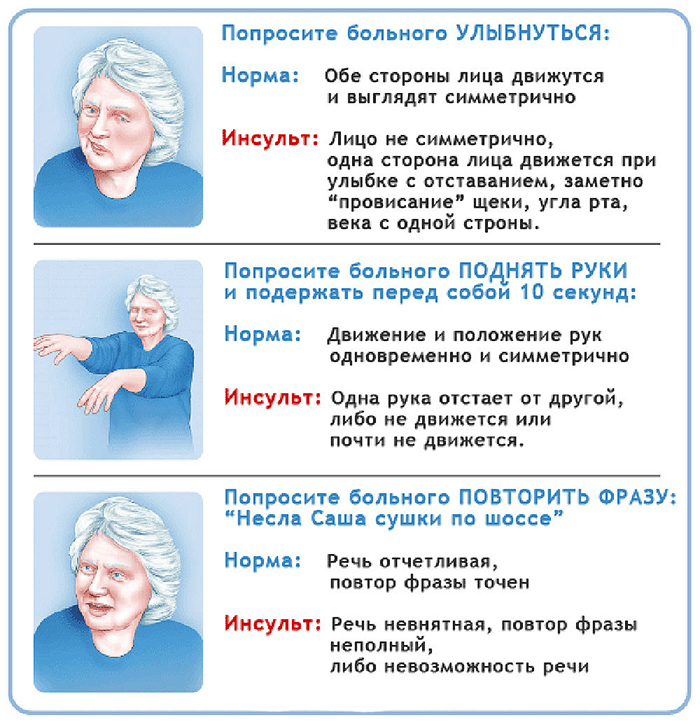 Микроинсульт симптомы и лечение в домашних условиях 312