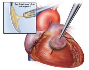 в оперативном лечении врожденных пороков сердца