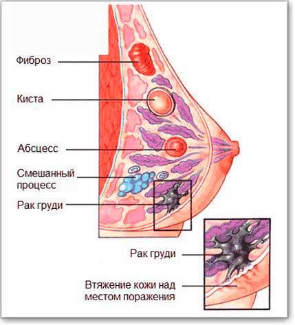 Боль в молочных железах перед месячными лечение