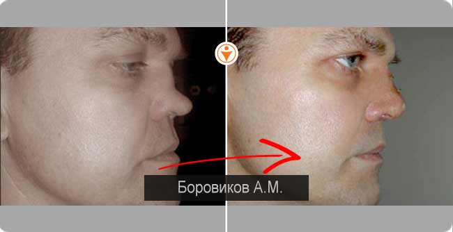 405Кто в россии лучше делает ринопластику