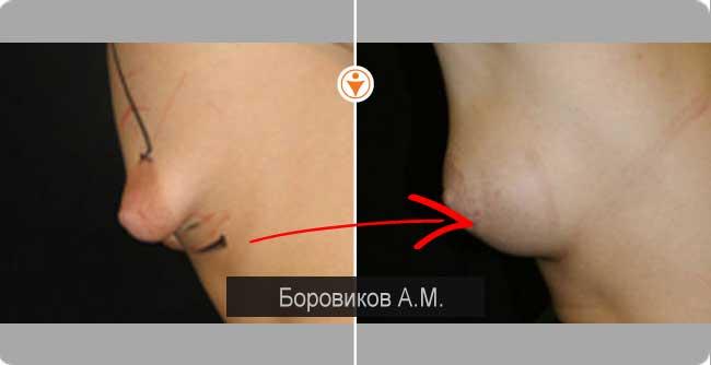 Как без операции сделать меньше грудь