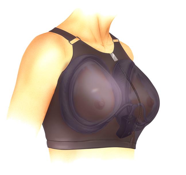 Женские гормоны для увеличения бюста