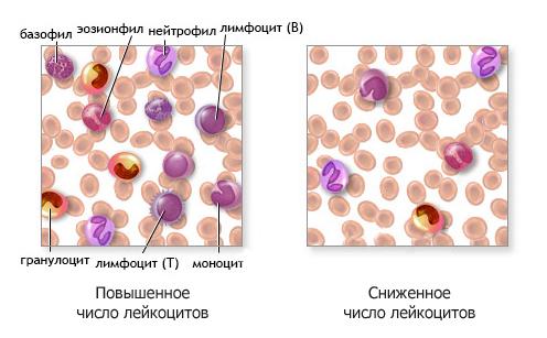 Общий анализ крови: что такое лейкоциты?