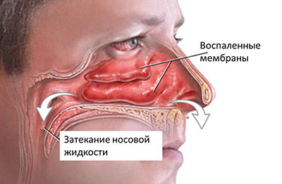 Чем капать нос ребенку при насморке до двух лет