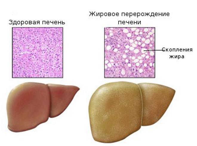 Красное пятно после прививки гепатита