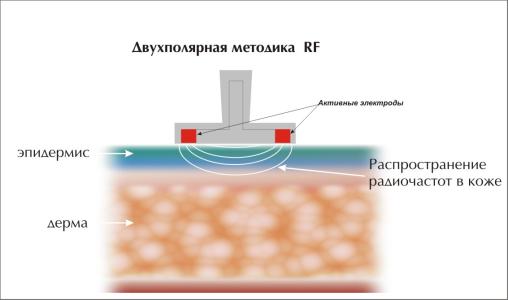 Аппаратное омоложение кожи в домашних условиях