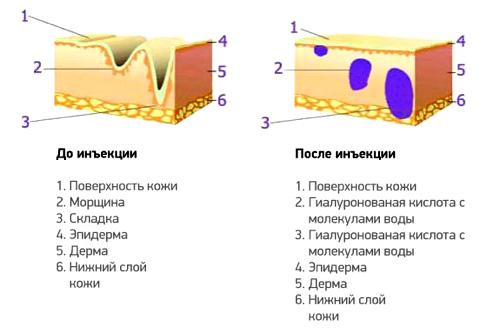 С гиалуроновой кислотой на «ты»: 4 вопроса о процедурах и средствах для увлажнения кожи