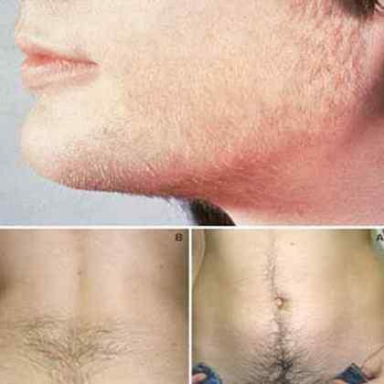 От чего зависит рост волос на теле у мужчин