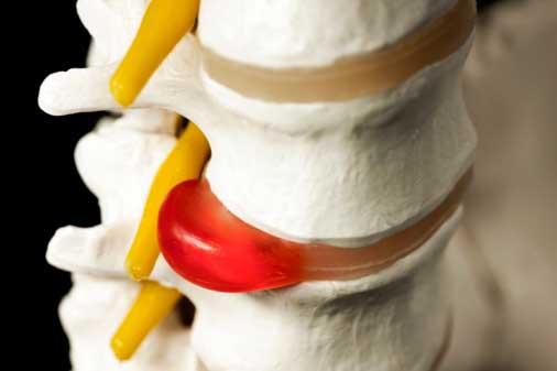 Лечебная гимнастика для грудного отдела позвоночника по дикулю видео