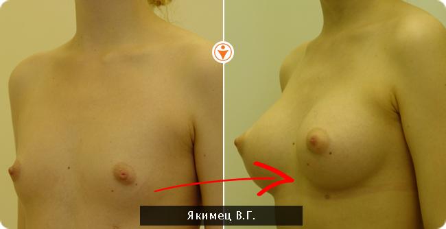 толстые женщины с отсутствием груди