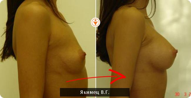 увеличение грудной железы у мужчины