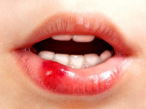 Как убрать шишку на губе в домашних условиях