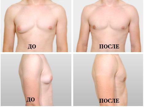 Втянутые соски без хирургии