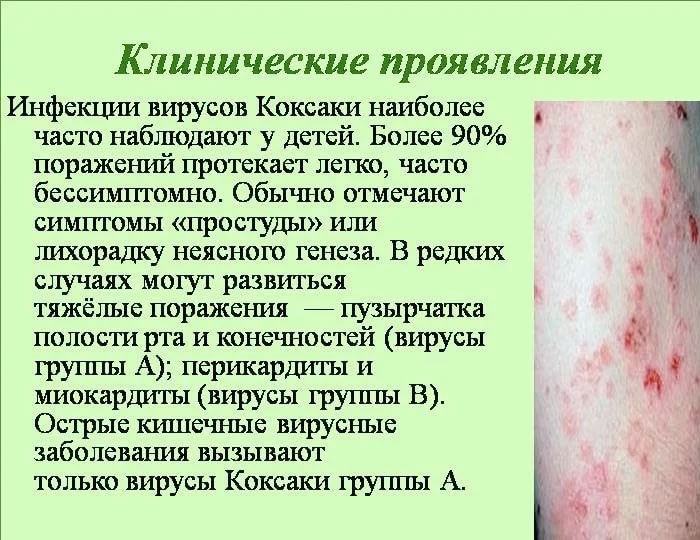 коксаки фото вируса