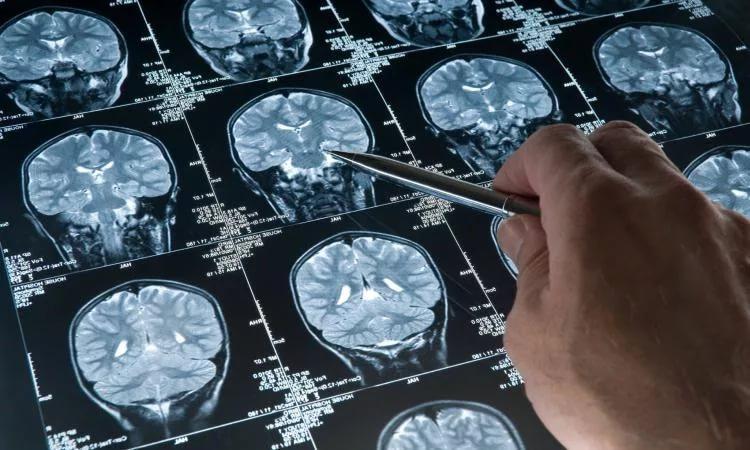 где сделать компьютерную томографию