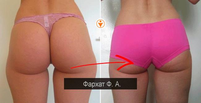 Операция по увеличению члена цена отзывы фото до и после хирургии