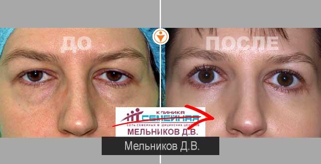 Операция на глаза в барнауле цены