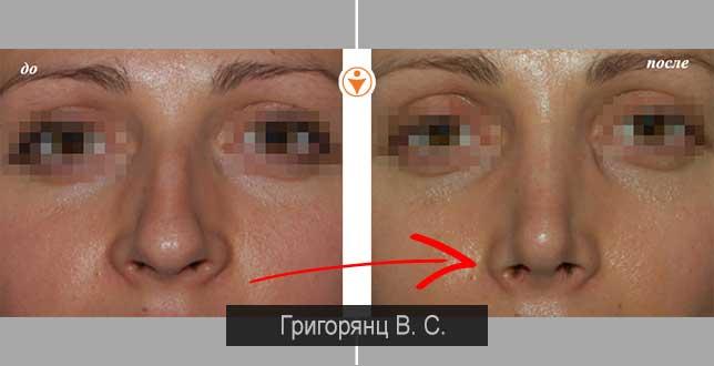 После ринопластики нос кривит в сторону