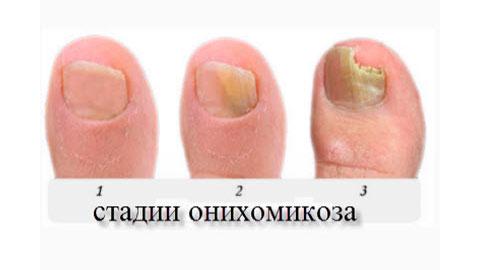 Ощущение при грибке между пальцами ног