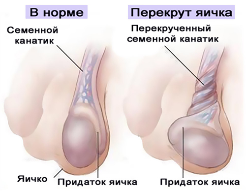 Что делать если одно яичко опухло и болит