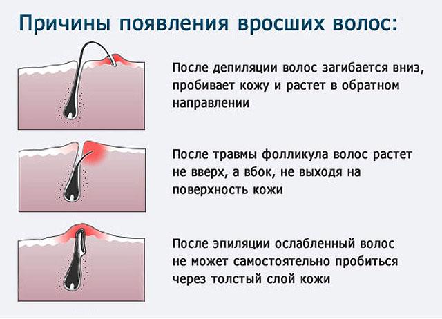 как сделать так чтоб волосы на ногах выпали