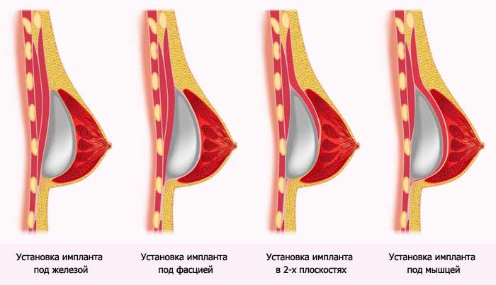 Маммопластика на сколько лет