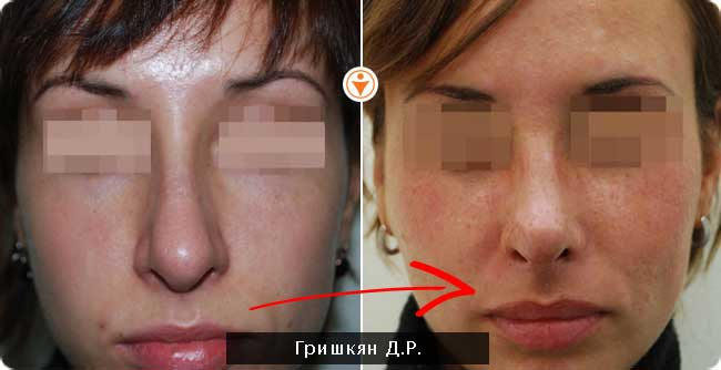 Фото до и после ринопластики, хирург айрапетян аа