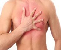 Межреберная невралгия симптомы и лечение в домашних