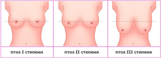 где сделать грудь спб