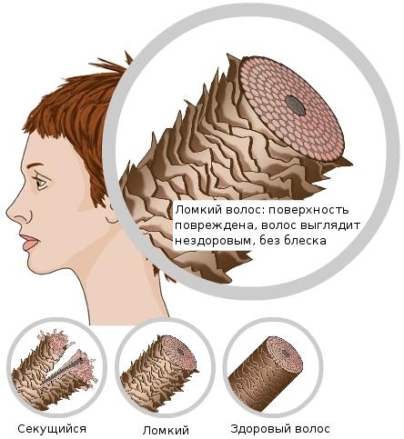 Трихоклазия. Ломкость волос