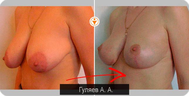 intim-uslugi-v-nizhniy-novgorod