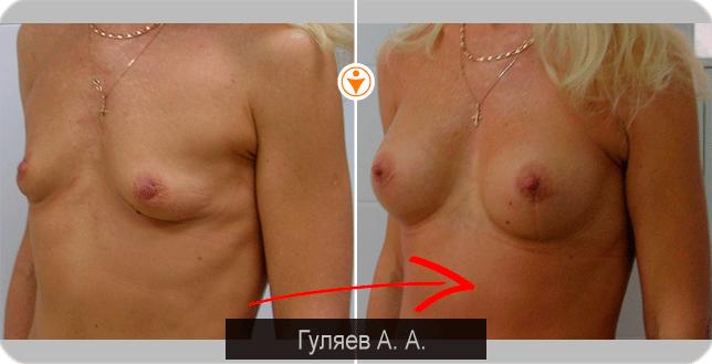 uvelichivaetsya-grud-blagodarya-seksu